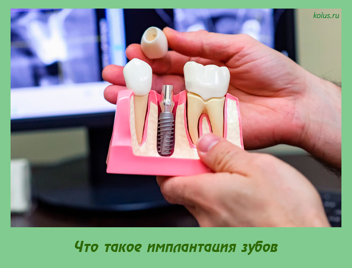 Что такое имплантация зубов