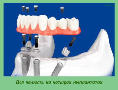Вся челюсть на четырех имплантатах
